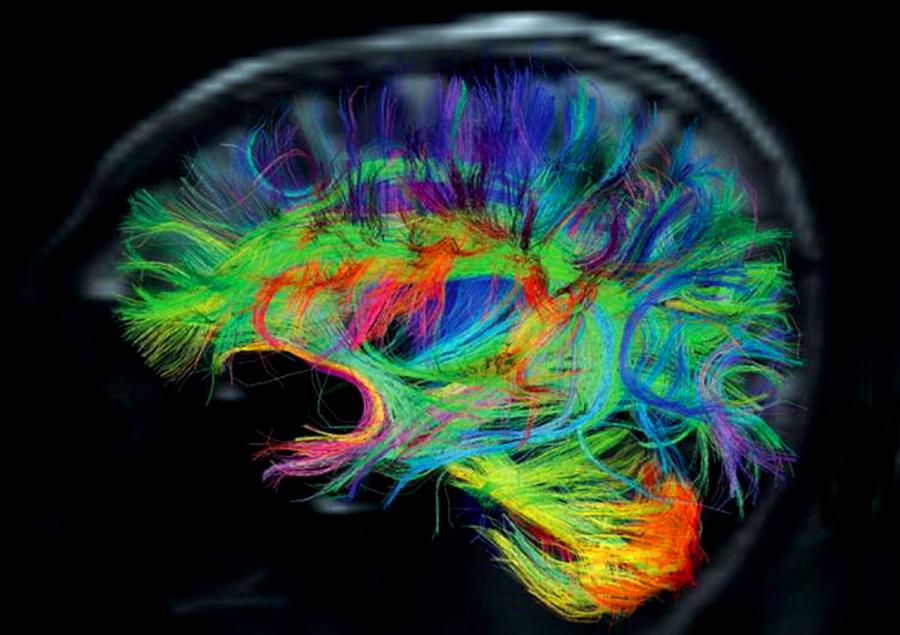 Brain fiber